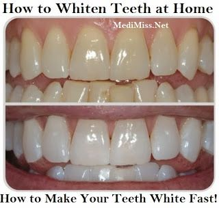 How to Whiten Teeth at Home - How to Make Your Teeth White Fast! ~ MediMiss