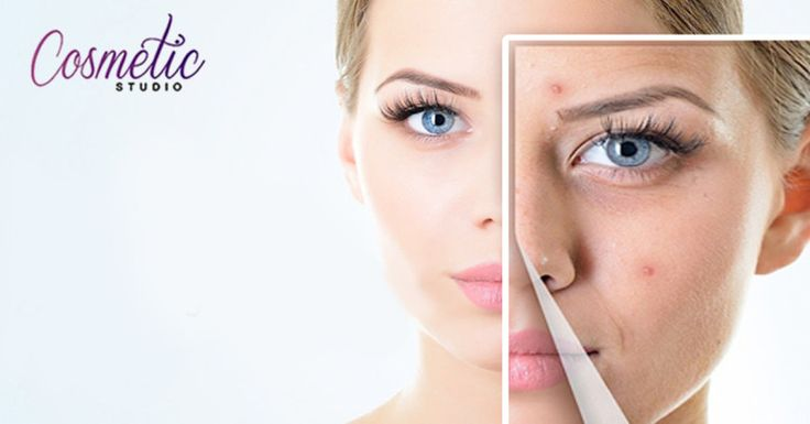 Choose A Good Cosmetic Clinic To Get Rid Of Stubborn Acne Marks