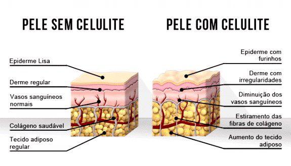 graus-da-celulite