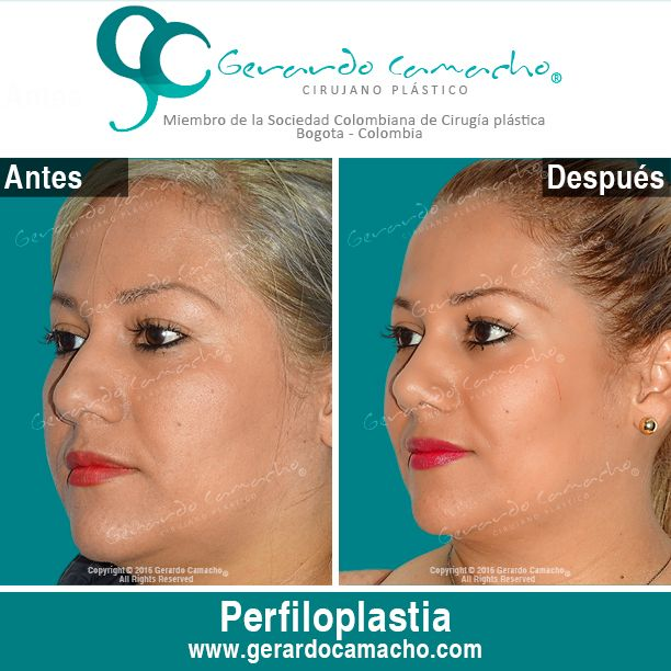 Perfiloplastía :  Cirugía de Nariz Mujeres + Bichectomía  Dr. Gerardo Camacho Cirujano Plástico  Estético y Reconstructivo Miembro de la Sociedad Colombiana de Cirugía Plástica  Bogotá –- Colombia Tel: (57)- 3187120345  WhatsApp