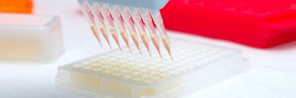 "Big Market Research adds a report ""Enzyme-Linked Immunosorbent Assay (Elisa) Testing Market - Size, Share, Global Trends, Company Profiles, Demand, Insights, Analysis, Research, Report, Opportunities, Segmentation and Forecast 2019""  Get Complete Report @ http://www.bigmarketresearch.com/global-enzyme-linked-immunosorbent-assay-elisa-testing-2015-2019-market"
