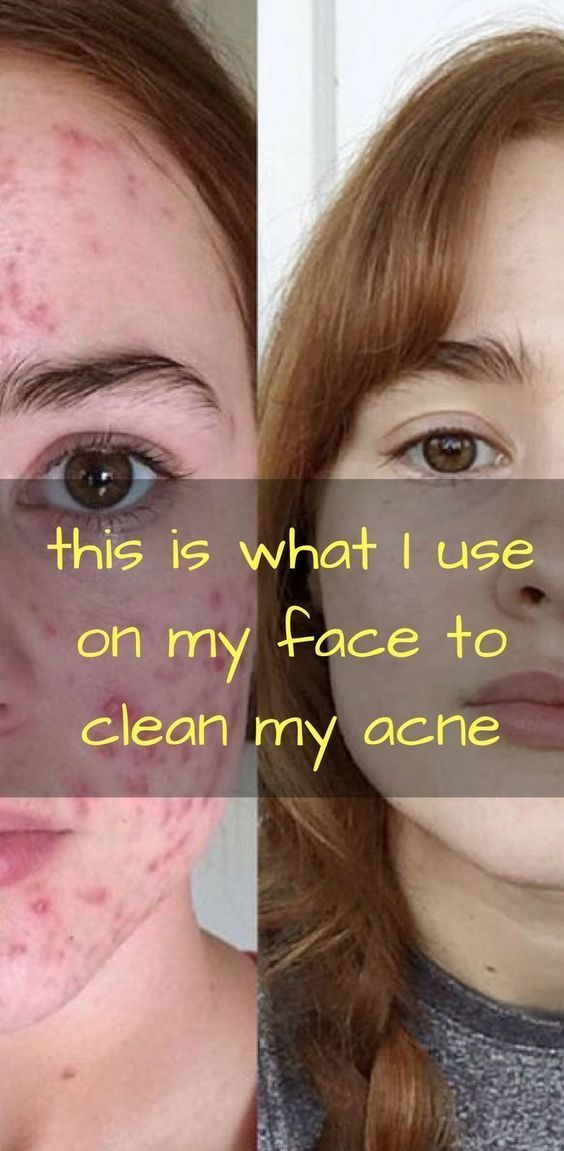 How to remove pimples marks from face in one day at home