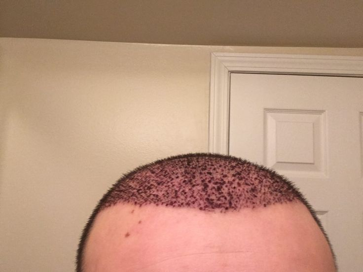 Hair Transplant Day 4 – Swelling On Forehead Not Painful