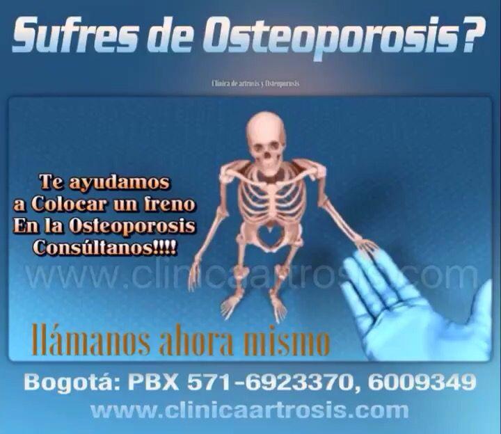 Tratamientos para la osteoporosis severa en Bogota. Visítenos en la Clínica de Artrosis y Osteoporosis www.clinicaartrosis.com PBX: +571-6836020, Teléfono Movil: +57-300-2597226 en Bogotá - Colombia.