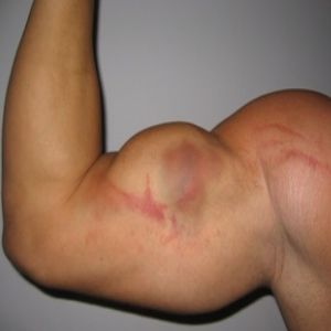 pulled breast muscle symptoms