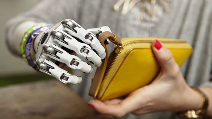 British woman receives anatomically accurate prosthetic hand