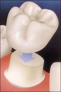 """#DentalCrowns A crown is a dental restoration that covers or """"caps"""" a tooth to restore it to its normal shape, size and function. Its purpose is to strengthen or improve the appearance of a tooth."""