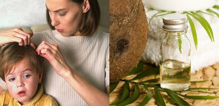 Remedio natural para eliminar los piojos - Vida Lúcida