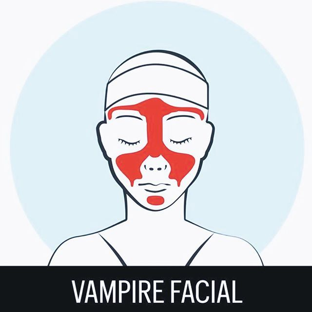 Reinvent yourself with a #VampireFacial! Your own platelets are injected back into your skin via. #microneedling to mimic a #facelift and get this... NO DOWNTIME! 💉 • • • #PRP #plateletrichplasma #vampirefacial #vampire #infographic #nonsurgical #nonsurgicalfacelift #gorgeous #skin #nyc #nodowntime