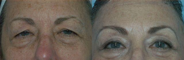 66 Year Old Female who had a Forehead Lift #drpaulblair #hurricanewv #wv #facialplasticsurgeon #foreheadlift #browlift