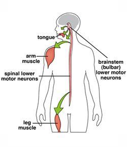 August 10 2013 spinal and bulbar muscular atrophy sbma for Bulbar motor neuron disease