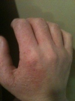 Dermatitis Herpetiformis, Maybe that Rash isn't just Eczema