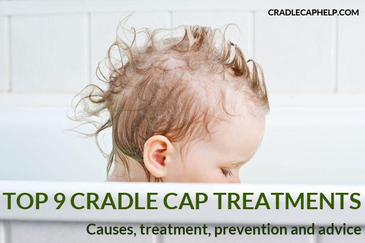 56 Best Cradle Cap Treatment Images On Pinterest Cradle