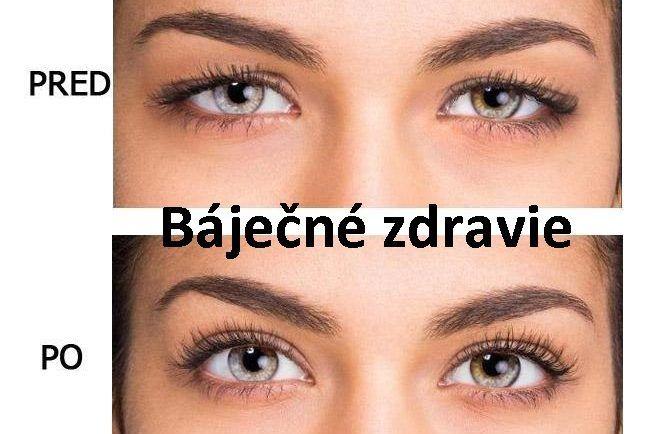 b469bb7f8 Prezradíme vám ako jednoducho odstrániť ovisnuté očné viečka a napnúť  uvoľnenú pokožku! - Báječné zdravie