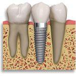 Implantes Dentários em Lisboa. O que são? Pode colocá-los? Onde colocá-los em Lisboa? Saiba tudo o que precisa. Conheça-nos na Clínica Dentária do Marquês.