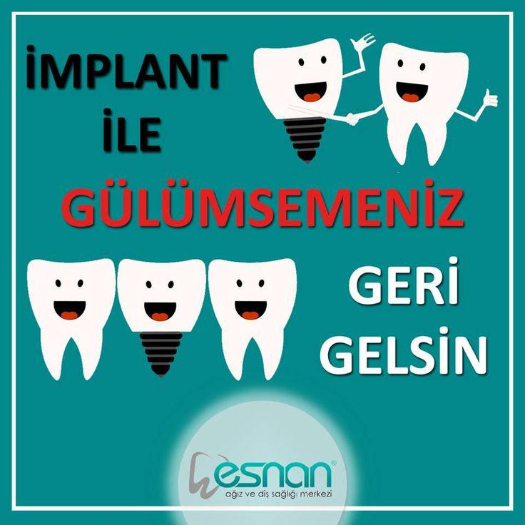 Kaybedilen dişlerin yerine tedavi amacıyla yerleştirilen, bir süre sonra kemik dokusuyla kaynaşan, doğal bir diş gibi iş görebilen, tiyanyumdan yapılmış diş köklerine implant diyoruz.  Detaylı bilgilendirme için şubelerimize bekleriz…  #implant #dişsağlığı #dişhekimi #esnan #tedavi #dişhastalıkları #diştedavisi #dişkliniği #dişhastanesi