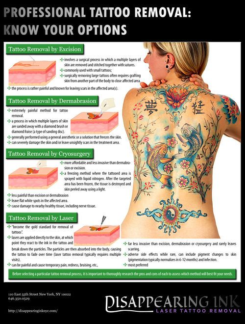 Laser treatment for tattoo removal is actually the only FDA approved way to remove a tattoo, other than plastic surgery of course. Before diving into any tattoo removal process do your research, ask questions, and get the facts. deleteitnow.com