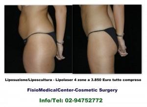 3.850 Euro per una Liposuzione Liposcultura a Pisa in 4 Zone Corpo, chiedi subito Info/Tel: 02-94752772