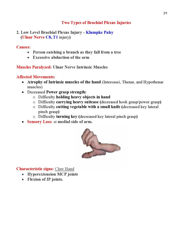 Peripheral Nerve Injuries Study Guide  page 29  https://www.inkling.com/read/skirven-rehabilitation-the-hand-upper-extremity-6th/chapter-45/presentation-of-specific-nerve