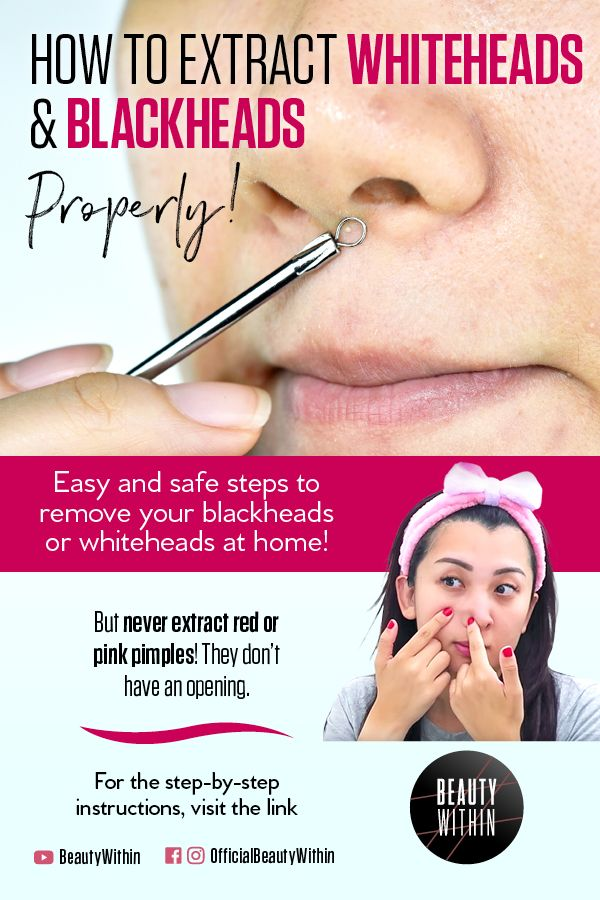 Pin On Acne Solutions