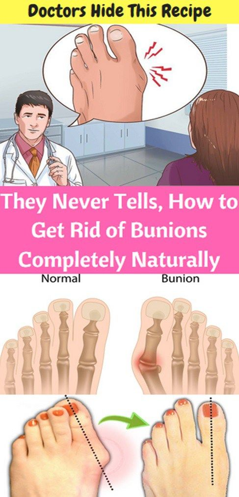 Doctors Never Tells, How To Get Rid Of Bunions Completely Naturally!!! - Way to Steal Healthy