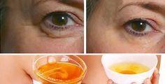 Come eliminare le rughe con aloe vera e olio d'oliva | Rimedio Naturale