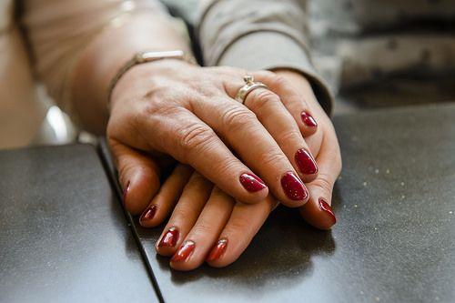 Você tem manchas o sardas nas mão que queira eliminar? No seguinte artigo explicamos como consegui-lo de maneira natural. É surpreendente!