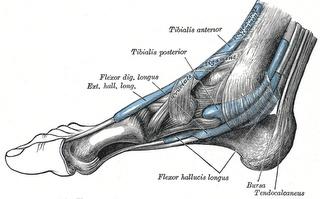 Tendinite do tibial anterior