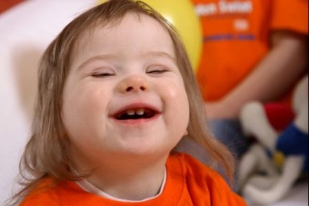 Down Syndrome Fact Sheet: Down syndrome is named after the British doctor John Langdon Down, who was the first to describe characteristics of people with Down syndrome in 1866.  Down syndrome, or Trisomy 21, is a condition whereby there are three copies of the 21st chromosome instead of two.  25 was the life expectancy for someone with Down syndrome two decades ago. Today, the approximate life expectancy is 60.