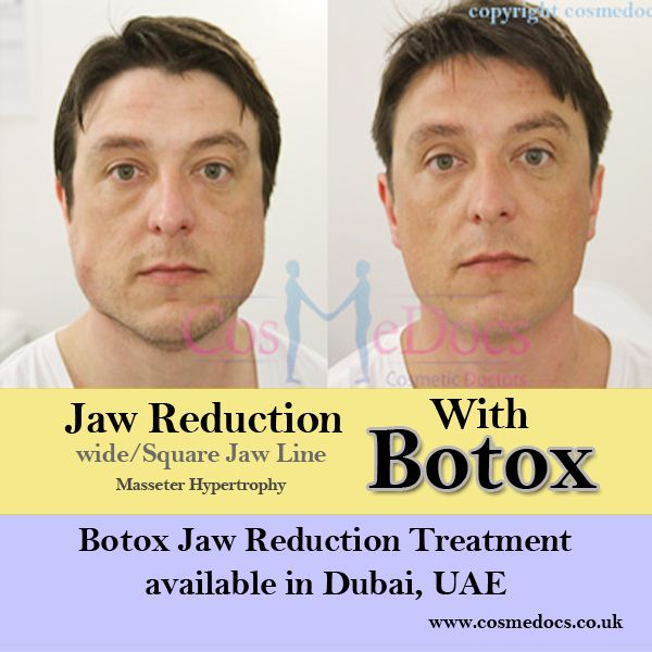 11 Best Botox Jaw Reduction Images On Pinterest Botox