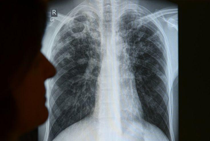 Trendumkehr: Zahl der Tuberkulose-Fälle in Deutschland steigt - SPIEGEL ONLINE - Gesundheit