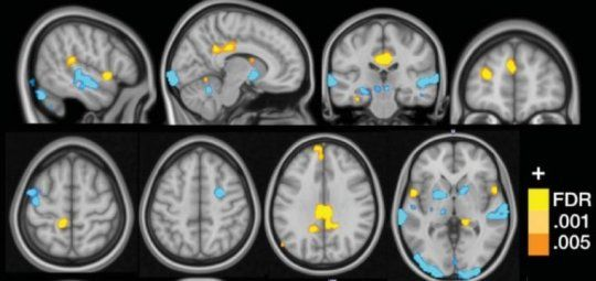 A brain signature that identifies fibromyalgia sufferers with 93 percent accuracy has been discovered by researchers, a potential breakthrough for future clinical diagnosis and treatment of the highly prevalent condition. Fibromyalgia is commonly defined as chronic widespread musculoskeletal pain accompanied by symptoms such as fatigue, anxiety and mood disorders, with significantly higher occurrence rates in women than in men.