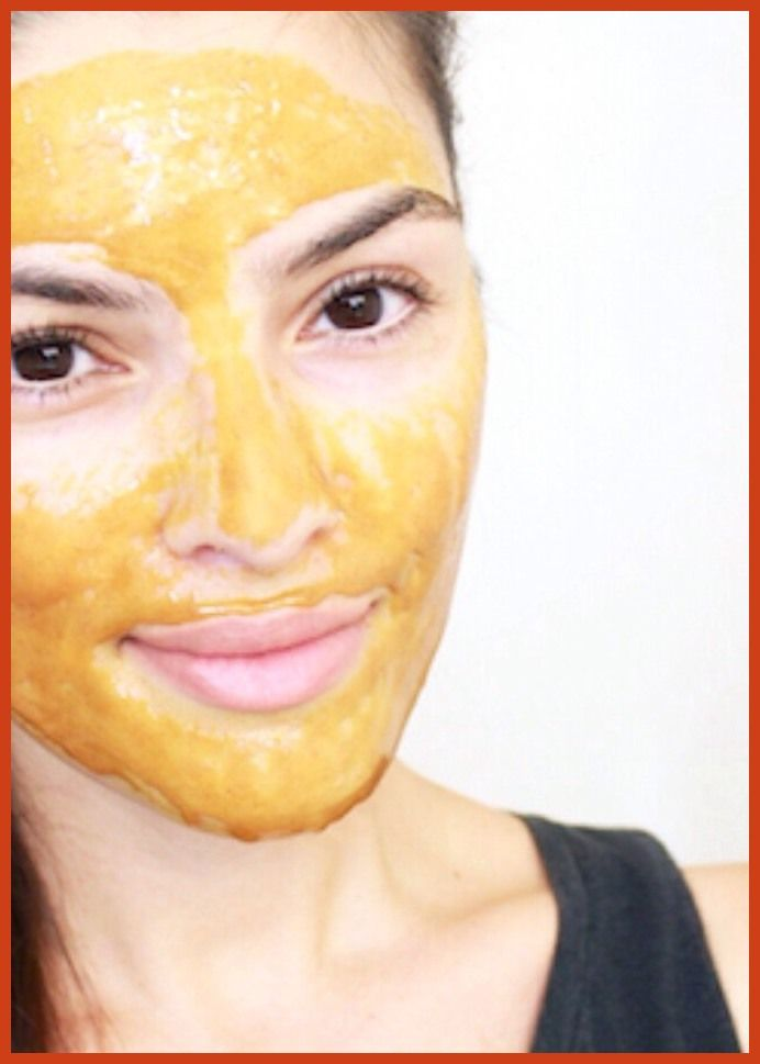 Acne Treatment - Clear Up Your Acne With These Tips >>> Find out more at the image link.