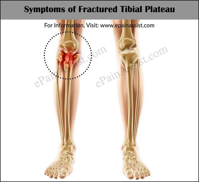 Signs And Symptoms Of Fractured Tibial Plateau Or Tibial Plateau Fractures Tibial Plateau Fracture Knee Injury Knee Fracture