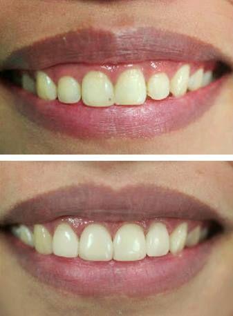 4 facettes sur les dents de devant