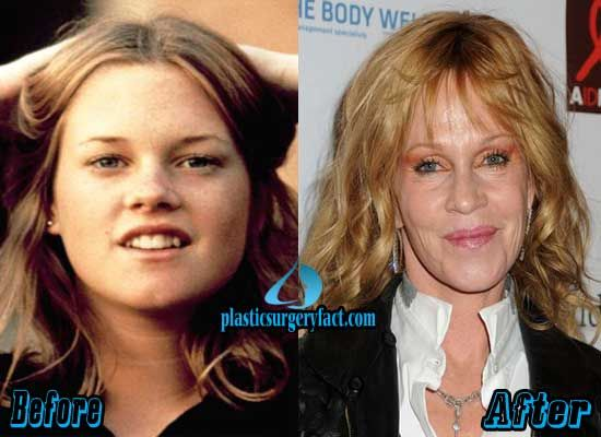 Did Melanie Griffith Have Plastic Surgery Http