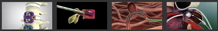 """Infuse Medical - """"For the medical device industry, 3D animation & modeling serves two chief purposes. [First:] 3D modeling effectively demonstrates the value of a specific device. By showing the device in simulated use, salesmen can easily communicate key information about a product to people across a wide range of technical expertise.... [Second: it can] realistically demonstrate how medical devices should be used and installed. The best way to learn about a device is to see it in…"""