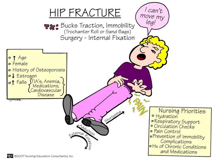 Hip Fracture | Nursing Mnemonics and Tips