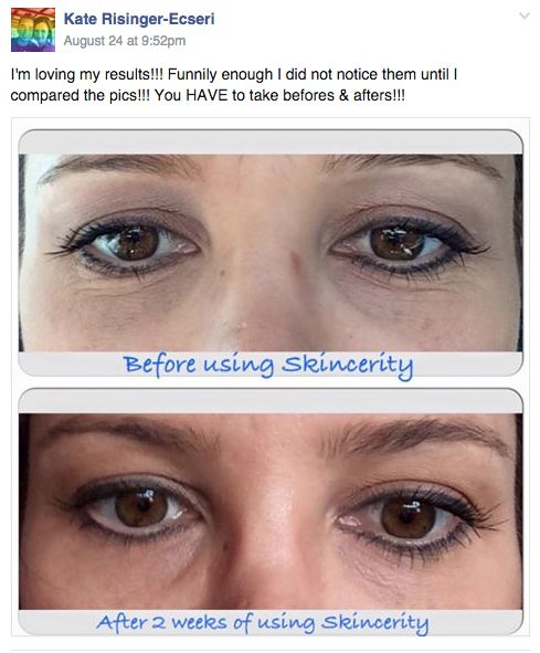 Wonderful results from Skincertiy + Eye Effects 3