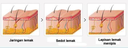 Prosedur Menghilangkan Lemak Perut dengan Liposuction