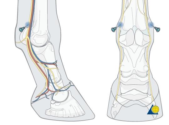 Abaxial-Sesamoid Nerve Block