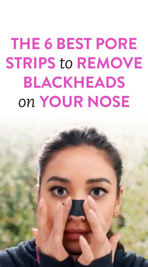 The 6 Best Pore Strips To Remove Blackheads On Your Nose