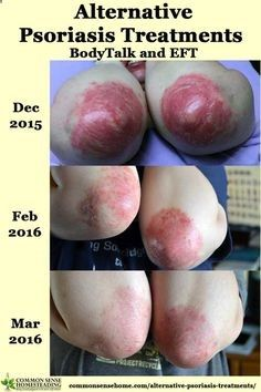 Psoriasis Revolution - Psoriasis Revolution - Psoriasis Revolution - One of the most fundamental alternative psoriasis treatments I used was to change my state of mind using two primary techniques - EFT and BodyTalk. - REAL PEOPLE. REAL RESULTS 160,000 Psoriasis Free Customers - REAL PEOPLE. REAL RESULTS 160,000  Psoriasis Free Customers - REAL PEOPLE. REAL RESULTS 160,000+ Psoriasis Free Customers