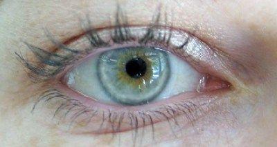 Έχετε χοληστερίνη; Δείτε το από τα μάτια σας!