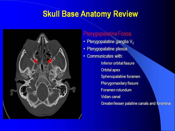 Best 51 RADIOLOGY ideas on Pinterest | Radiology, Base and Cranial ...