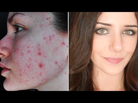 How To Cover Acne & Scars | Everyday Makeup Transformation Routine - YouTube