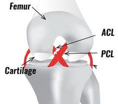 Anterior Cruciate Ligament Injury - ACL tear  - symptoms and diagnosis, treatment, surgery and rehab exercises for ACL Injuries