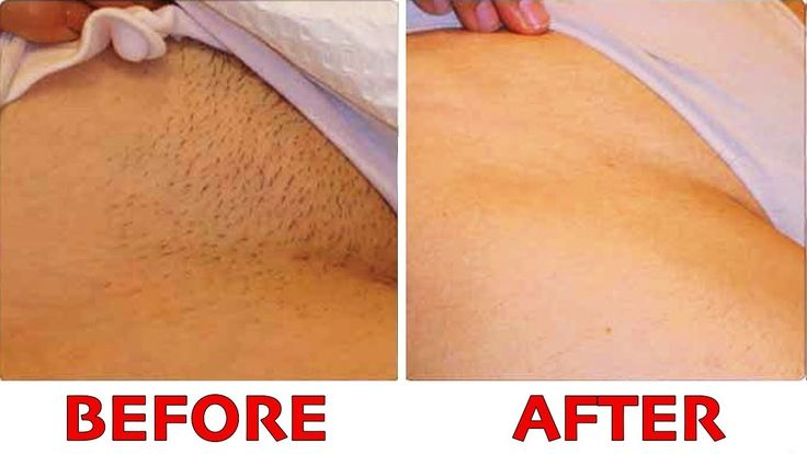 How To Remove Pubic Hair Permanently naturally - YouTube