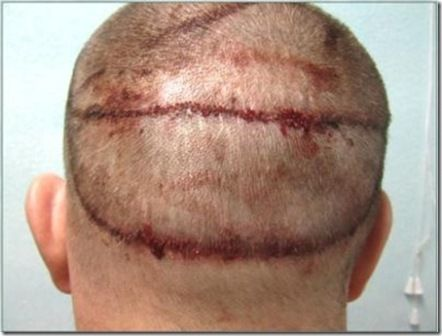 17 best hair transplant images on pinterest hair loss treatment some countries offer little guarantee if something went wrong with the treatment pmusecretfo Gallery