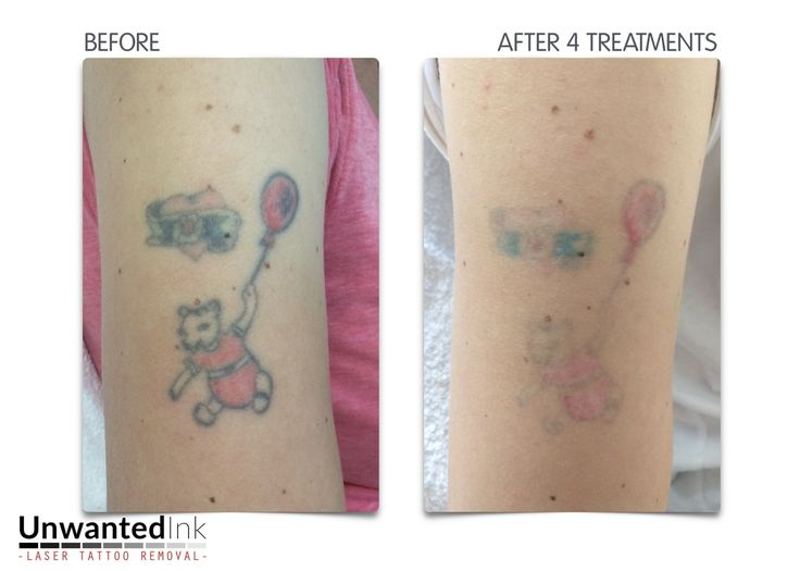 104 best laser tattoo removal sydney unwanted ink tattoo